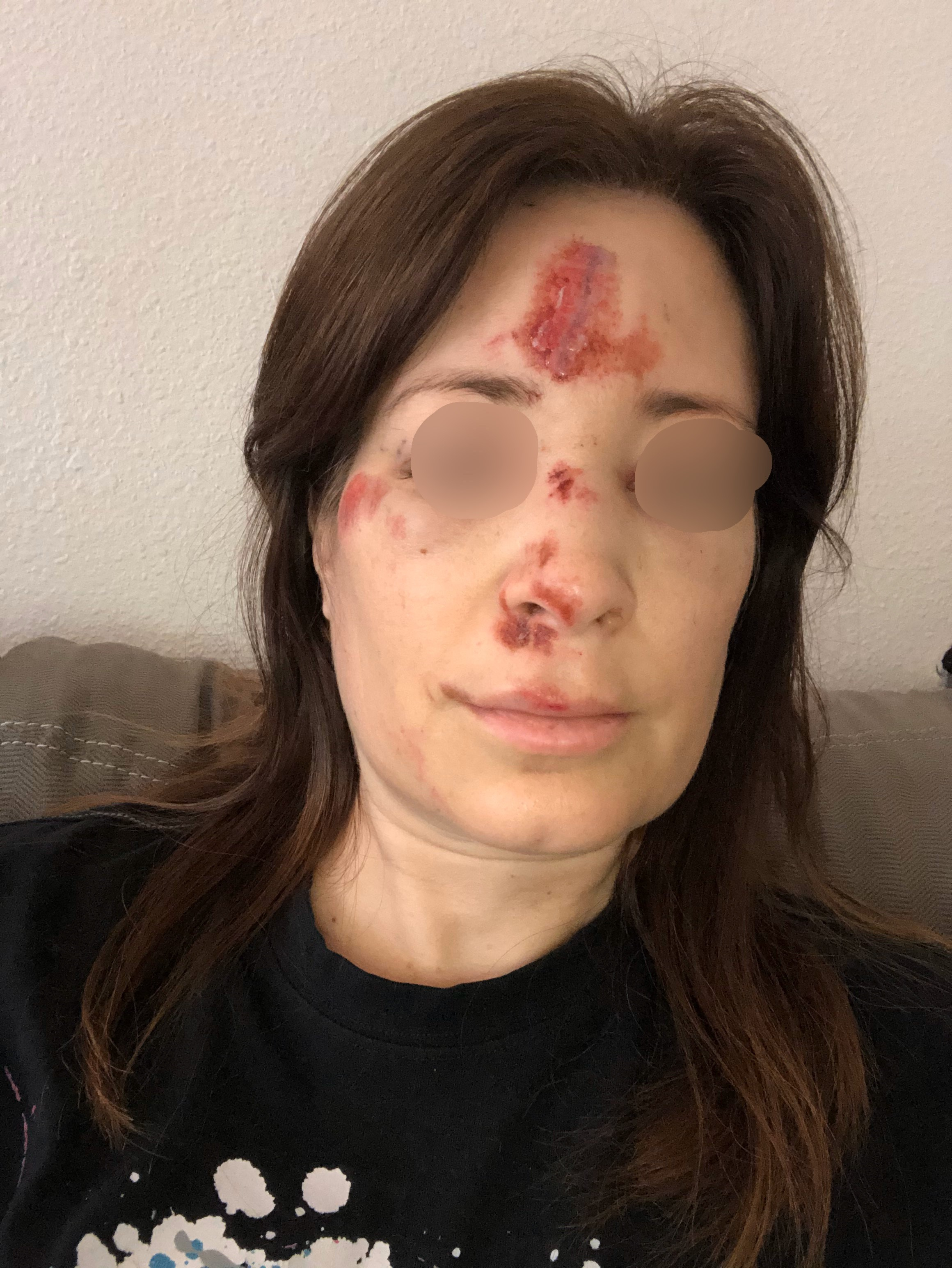 Woman with road rash on her face from e-scooter accident