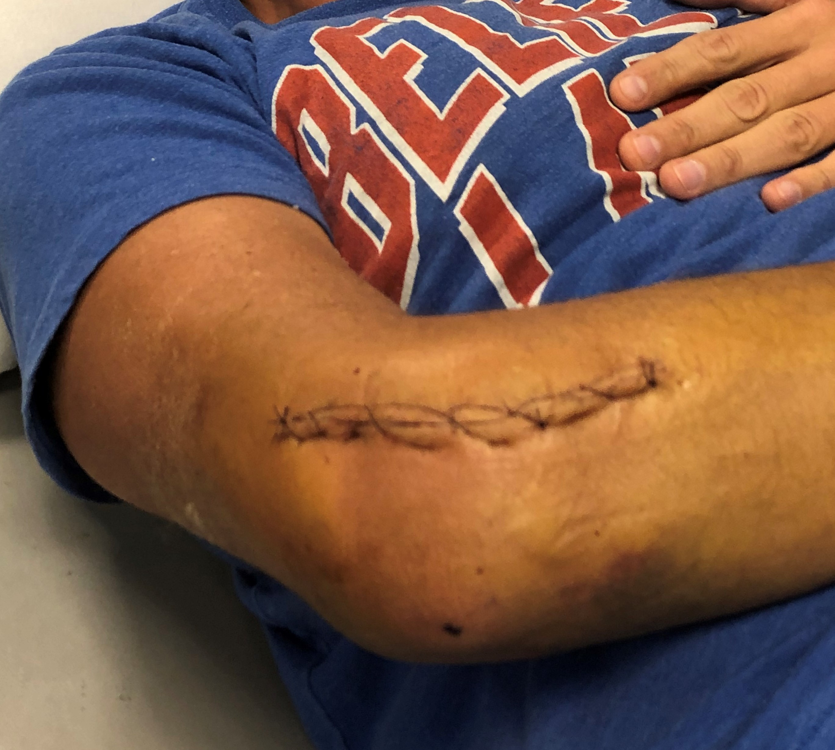 Right elbow of injured person with stitches