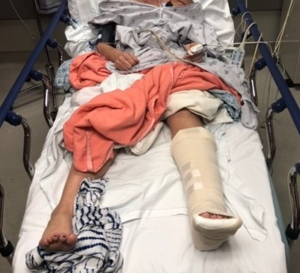 Patient in hospital bed with splint on left foot